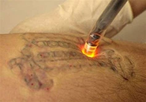tattoo removal articles 13 best re d images on laser