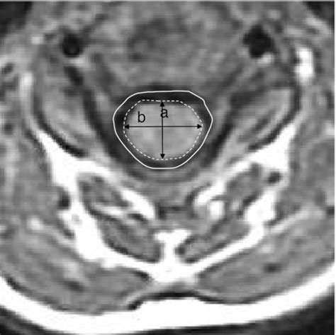 axial section axial section of t1 weighted mri showing the measuremen