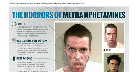Medicine Detox Meth faces of meth photos faces of meth ny daily news