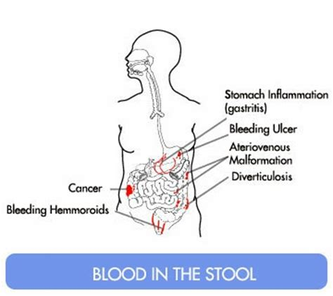 What Does It When You A Bloody Stool by Hemorrhoids Low Blood Pressure