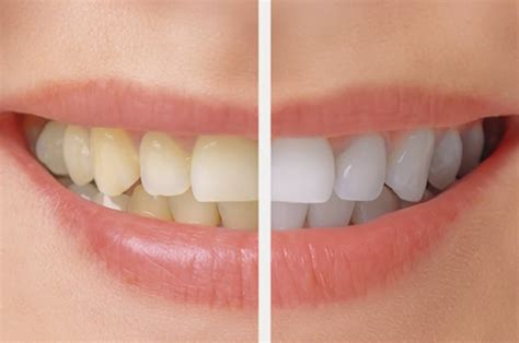 tooth whitening archives  smile