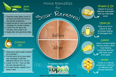 home remedies for scar removal top 10 home remedies