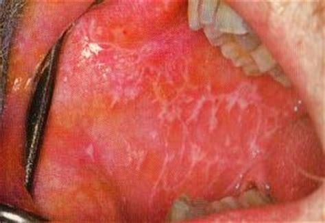 prurito prepuzio interno odontostomatologia appunto di odontostomatologia prof