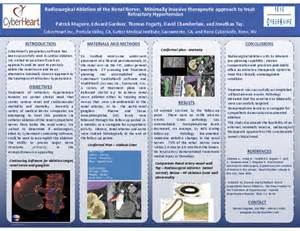 48 by 36 poster template cureus radiosurgical ablation of the renal nerve