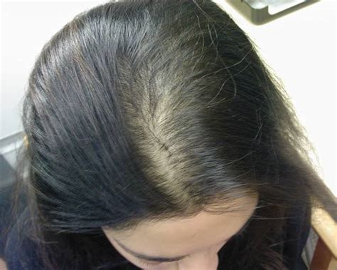 20 month hair thinning on top alopecia androgenetica bij vrouwen female pattern baldness