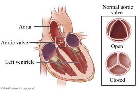 pictures  aortic valve healthiack