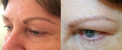 how to remove tattooed eyebrows removal lightening treatment