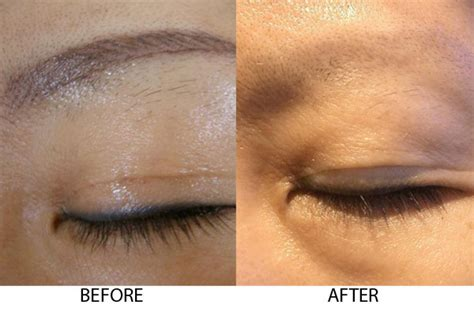 removable eyebrow tattoo removal laser dr al rustom skin laser centre