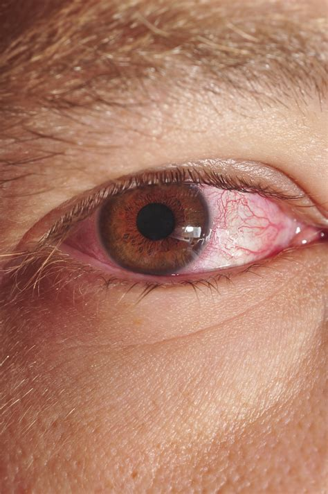 eye infection optrex infected eye drops side effects seotoolnet