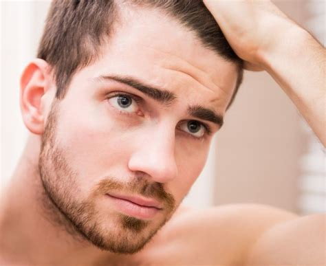 hair shedding  hair loss vichy