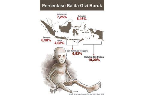 kasus gizi buruk anak indonesia  tinggi
