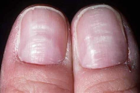 dent in nail bed horizontal ridged nails www pixshark com images