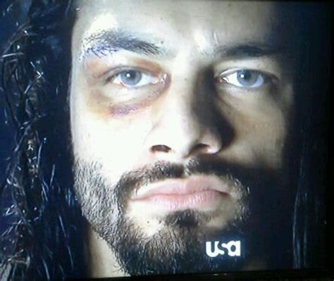 reigns eye color bruised eye and all he s still reigns