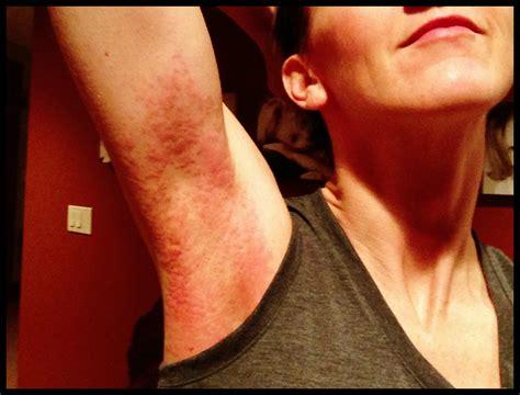 Armpit Detox Rash by Dri Fit Dryer Sheets Gluten Intolerance Armpit Rash