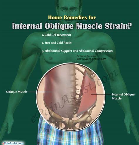 home remedies exercises for oblique strain
