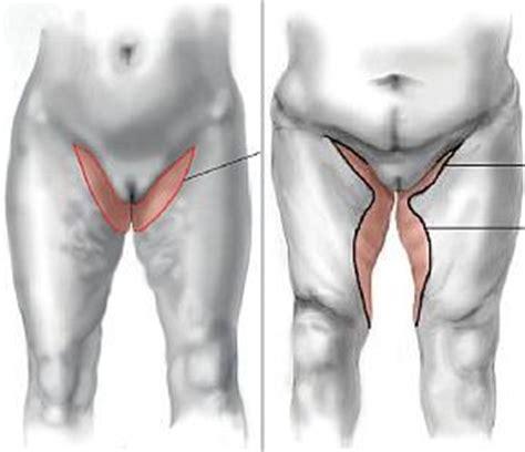 intervento interno coscia lifitng interno cosce post obesit 224 e dimagrimento forte