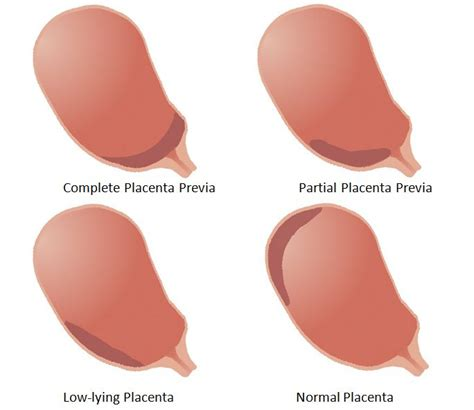 anterior placenta previa c section what does reply all do images frompo
