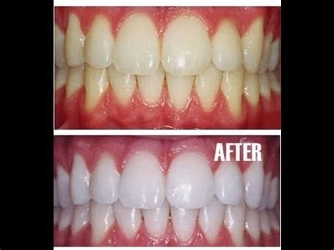 whiten teeth naturally  home remedy youtube