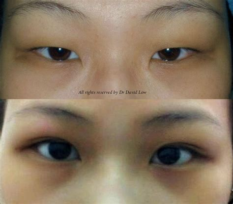 double eyelid the art science of beauty double suture and twist dst