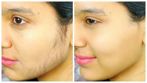 remove face hair beauty tips  totka