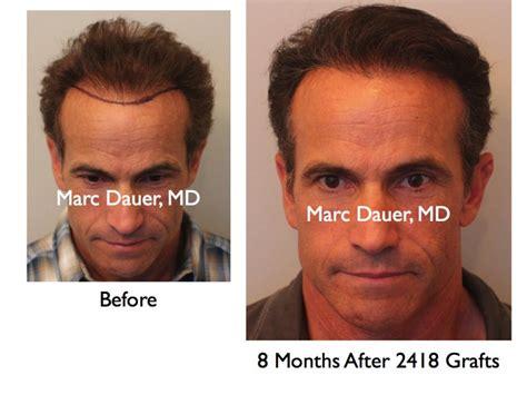 hair transplant america hair restoration surgery hair loss treatment hair