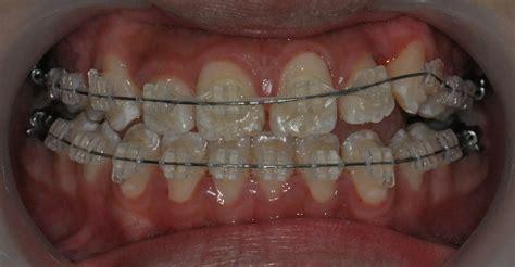 titanium teeth titanium canine teeth related keywords suggestions titanium canine teeth