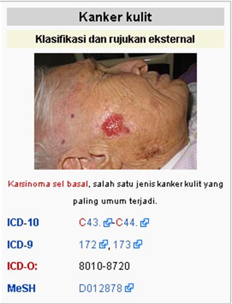membedakan jerawat  kanker kulit