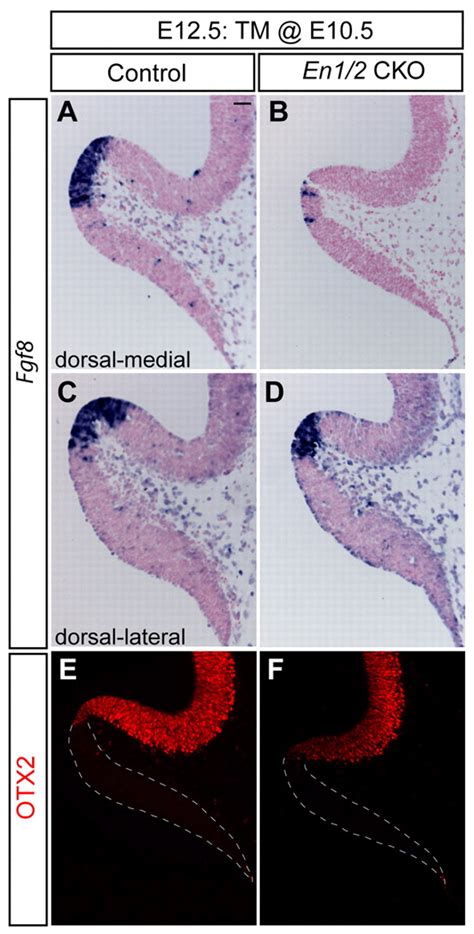 pattern formation in the cerebellum the engrailed homeobox genes determine the different