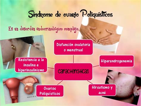 imagenes reales de ovarios poliquisticos ovarios poliquisticos