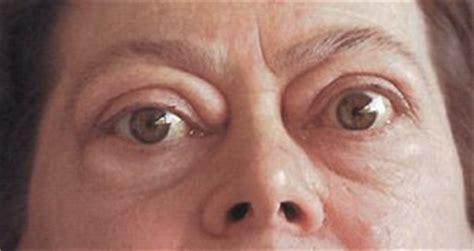 innere unruhe hashimoto schilddr 252 se hyper und hypothyreose klinik via medici