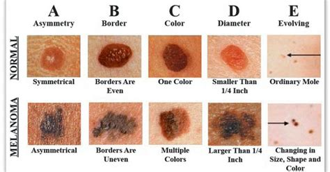 Mole Shedding by How To Recognize Skin Cancer This Could Save Your