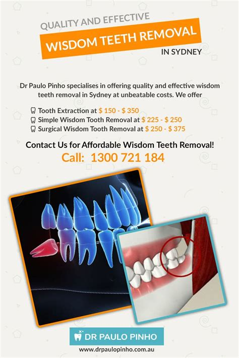 tooth extraction cost best 25 wisdom teeth removal cost ideas on human teeth mourning ring and