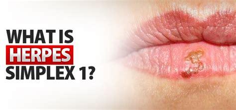 Penghilang Bekas Herpes Obat Cacar Herpes Zoster 1 obat penyakit herpes gatal obat penyakit herpes