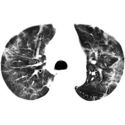 ct outpaces dna testing  early coronavirus detection