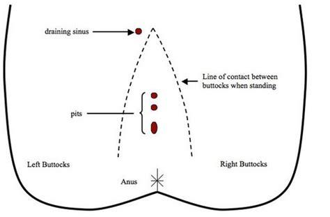 pilonidal cyst location pilonidal abscess cyst pictures causes treatment