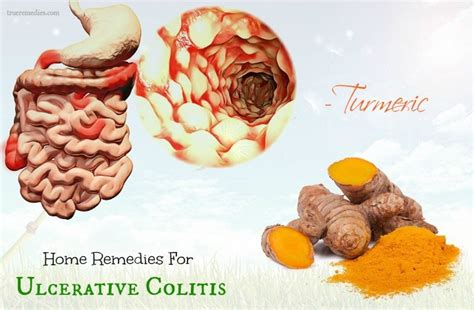 25 home remedies for ulcerative colitis symptoms
