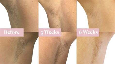 brazilian wax photos before after hair removal laser hair removal laseraway