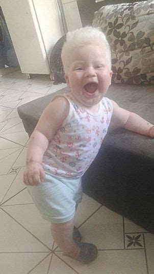 albino hairy pubic hair beb 234 albino ganha festa de anivers 225 rio de um ano no