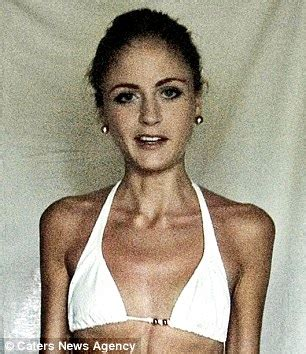 On The Anorexic Model Problem She Says by Swedish Former Anorexic Str 246 Mberg Says Weightlifting