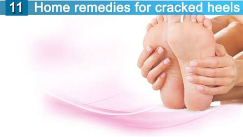 11 home remedies for cracked heels are