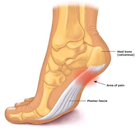 Planter Of Foot by Plantar Fasciitis