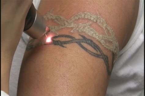 tattoo removal aftercare top 15 removal tips and aftercare amazing