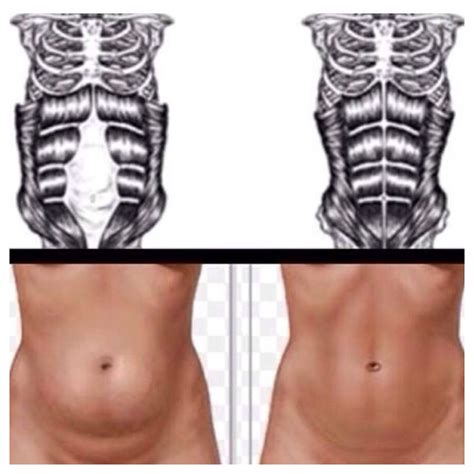 abdominal muscles after c section diary of a fit mommyfit pregnancy healing diastasis recti