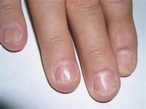 nail diseases lichen planus of the nails picture