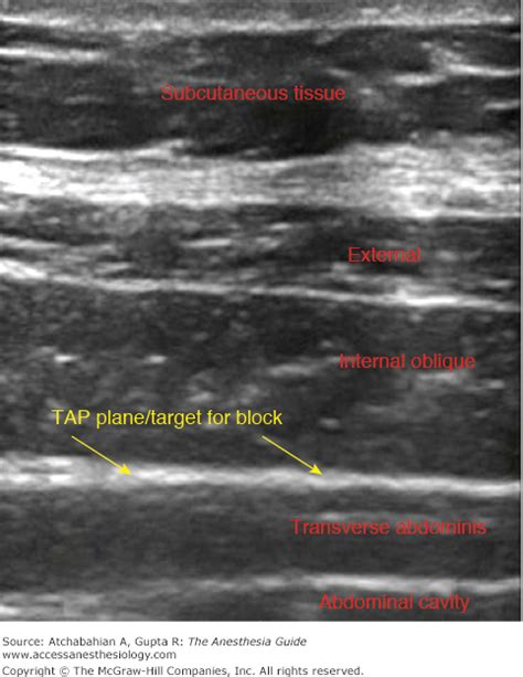 tap block cesarean section chapter 152 transversus abdominis plane tap block