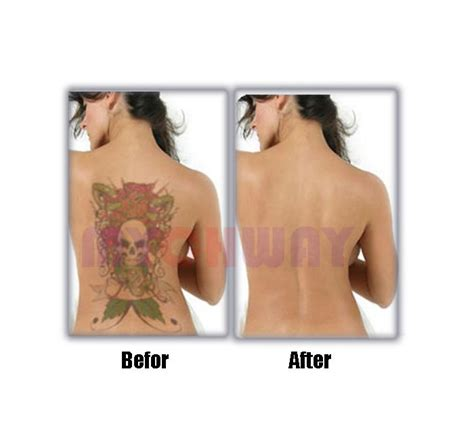yag laser tattoo removal reviews lt hf302 buy pro q switch yag laser machine
