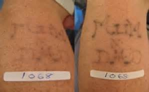 tattoo removal in salisbury sharp practice