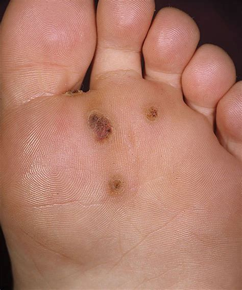 Plantar Feetandpodiatry What Causes Planters Warts