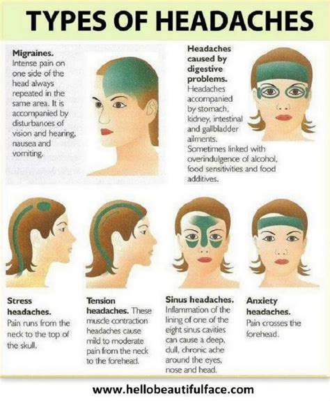Common Causes Of Headaches Diagram Common Causes Of