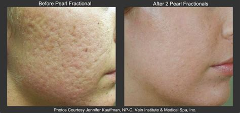 Treatment Laser Pores large pores